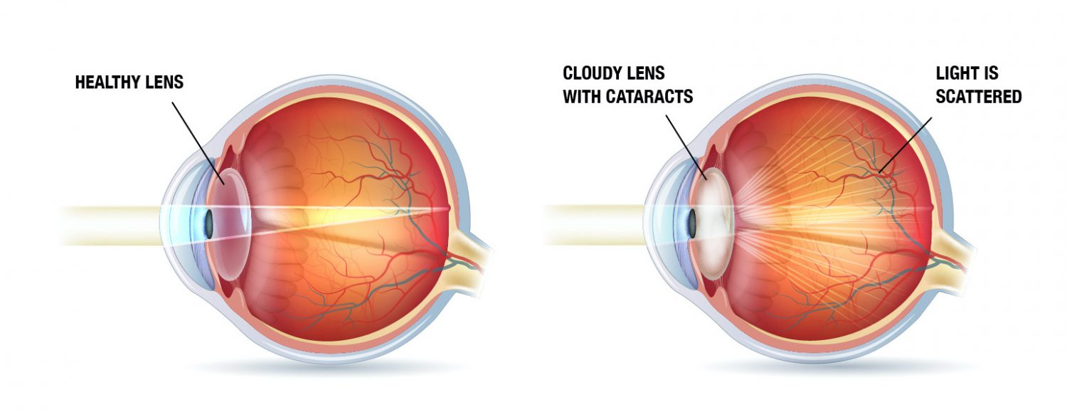 Cataract and how light affects it