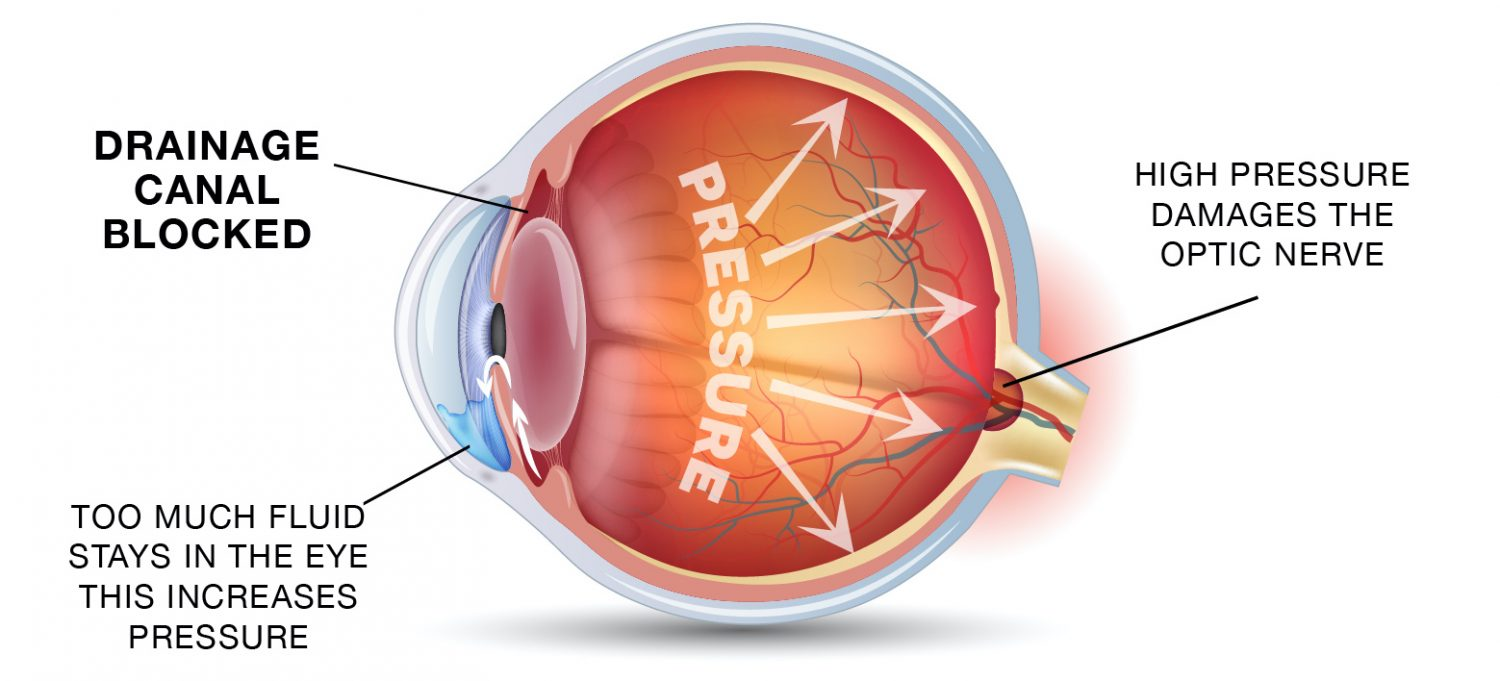 Glaucoma and the eye